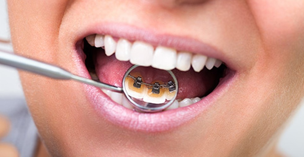 Image showing a lingual orthodontic appliance