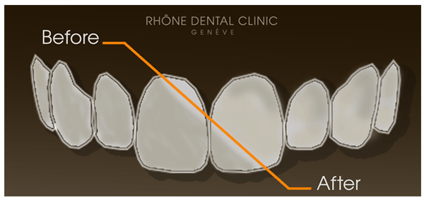 Complete dental care with facet placement