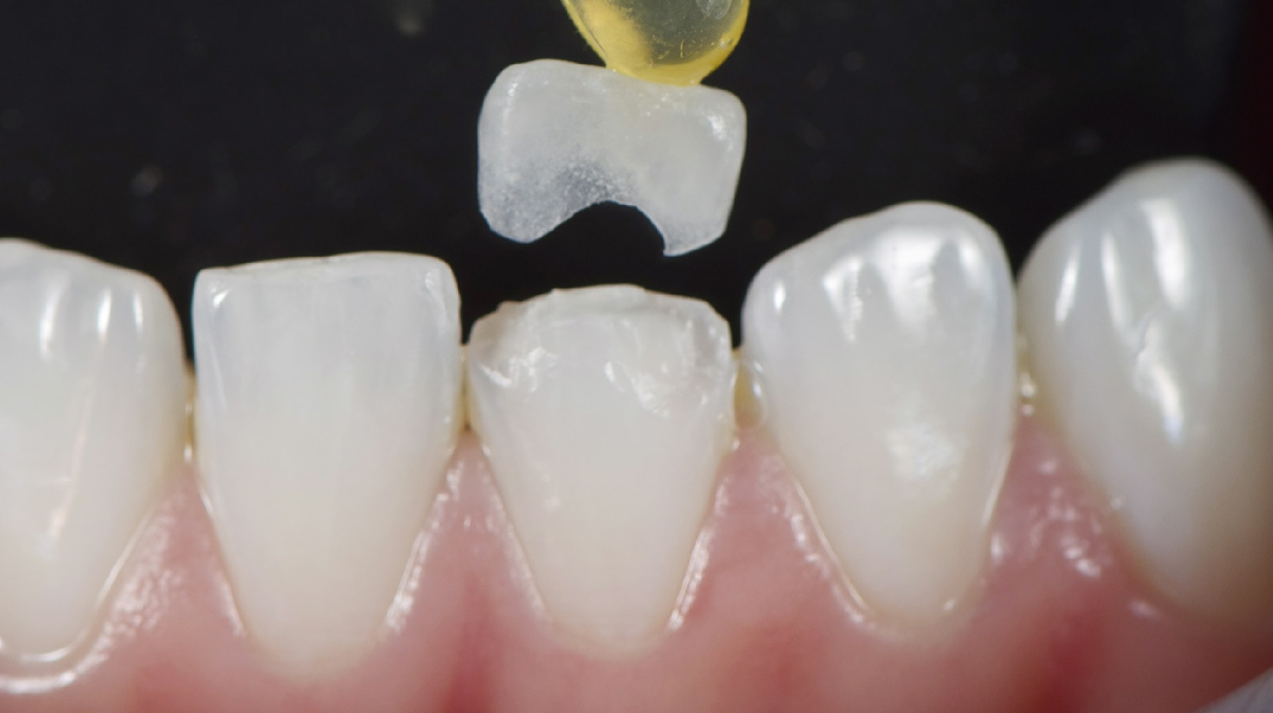 Quote request for a dental prosthesis