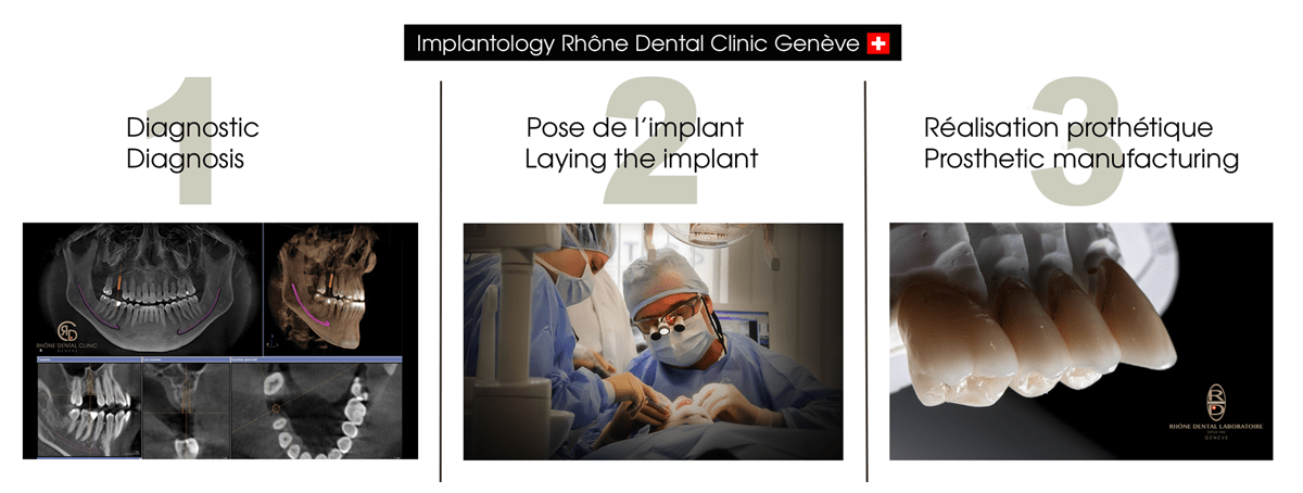 Request a quote for a diagnosis for a dental implantology in Geneva
