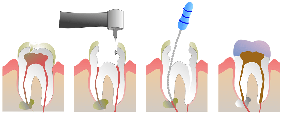 Endodontics and dental care in Geneva
