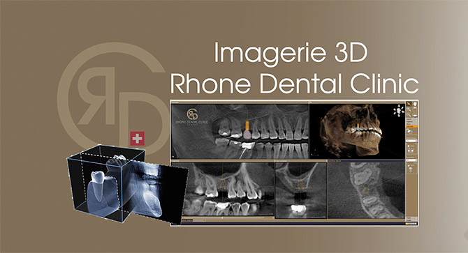 Imaging for prostheses and dental veneers