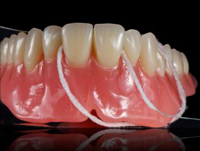 Removable prosthesis by Rhône Dental Clinic specializing in sedation care